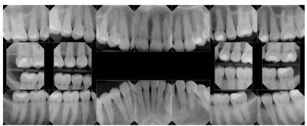 3D компютърна томография (СВСТ)