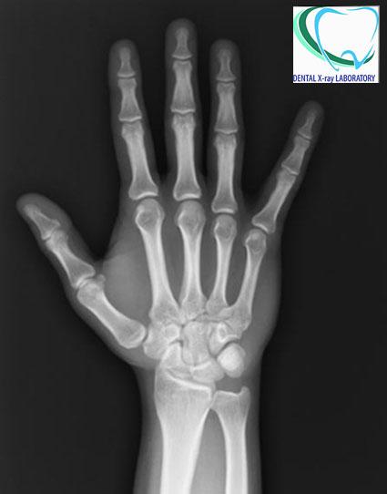 Рентгенография на китка