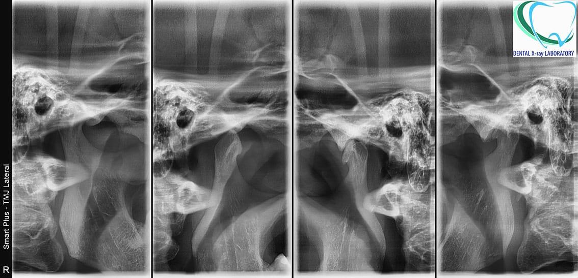 Ортопантомография на TMC (Ортопантомография на TMC