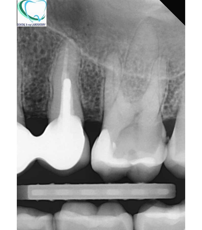 Сегментна рентгенография на зъб