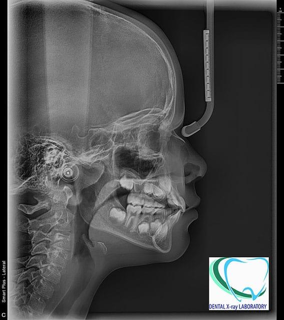 Телерентгенография череп